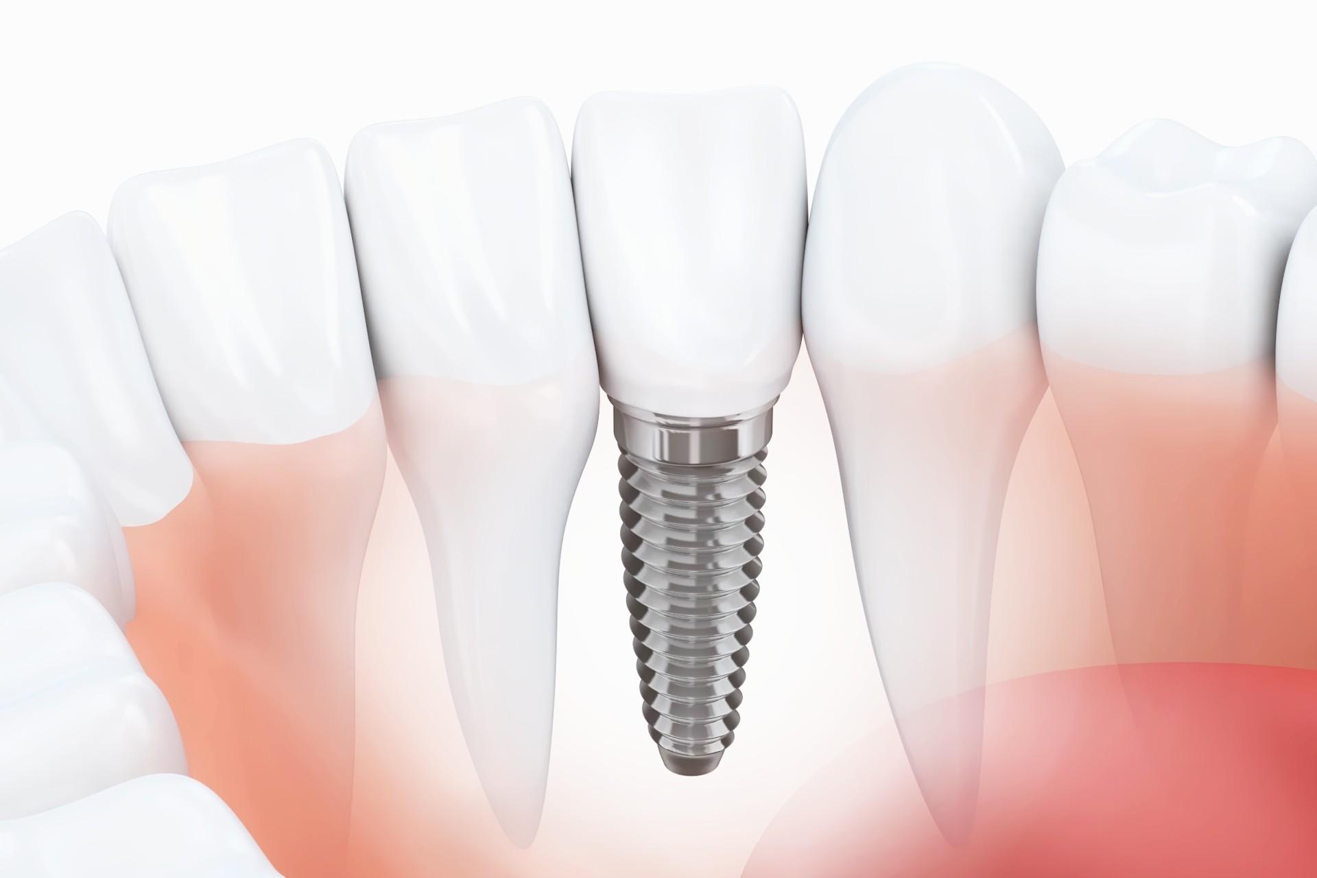 Implant zęba w jamie ustnej