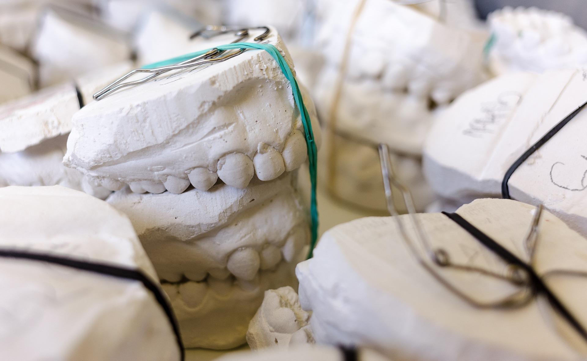 Protezy zębów